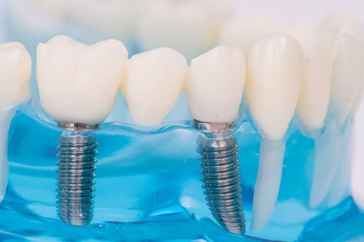 Close-up of artificial teeth at dentist