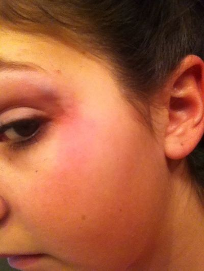 Only me would hit my head on the table ☺