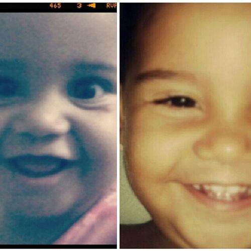 Antes e depois, meu filho a cada dia fica mais lindo! RazãoDaMinhaVida