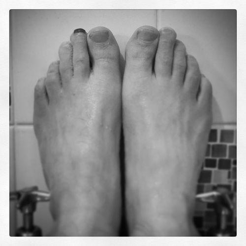 """Black Nail"" Had this for 4 months now, he's part of my life! :) Blacknail Joysofrunning Marathon Marathontraining Running Training Twentysixpointtwo Toes Feet Toenail"