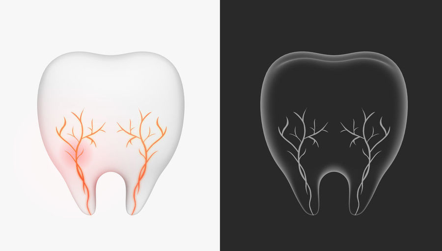 tooth 3D concept x-ray Dental Clinic Tooth Periodontal Enamel Toothbrush Healthy Toothy Tooth Care Dentist Toothache Hygiene Caries Caries Dental Tooth 3D 3d Rendering 3D Illustration Treat Hospital Molar Prophylaxis Stain Orthodontist  Dentures Stomatology