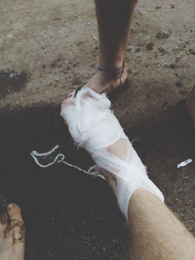 До кости порезал палец