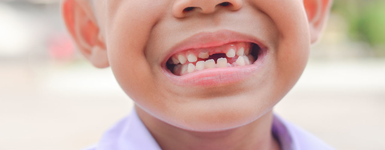 Asian boy smiles broken tooth Bed Decay Dental Dentist Hygiene Lost Medicine Milk Tooth Missing Mouth Broken Caries Child Childhood Emotion Examining Gum Healthy Eating Innocence Males  Medical Patient Smiling Teeth Wide
