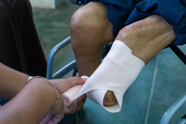 Cropped hand of doctor wrapping bandage on prosthesis leg in hospital