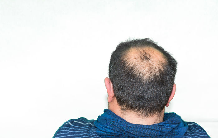 Adult Adult Only HEAD Isolated Man Adult Bald Bald Head Balding Baldness Caucasian Caucasian Ethnicity Caucasian Male Close-up Headshot Headwear Human Body Part Isolated On White Isolated White Background Lifestyles Male Men Portrait Real People Rear View