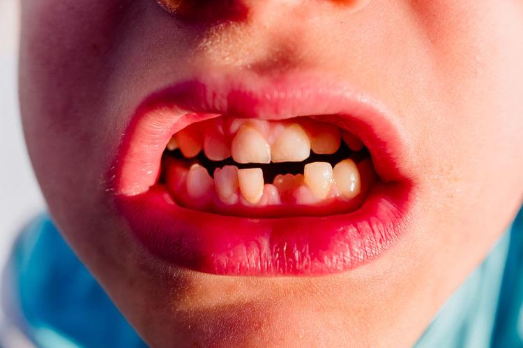 Close-up of boys teeth
