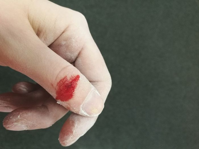 Injury Accident Cut Finger Hurt Blood Cut Wound EyeEm Selects Human Hand Fingernail Blackboard  Women Close-up Human Finger Human Blood Thumb Skin Care Black Background