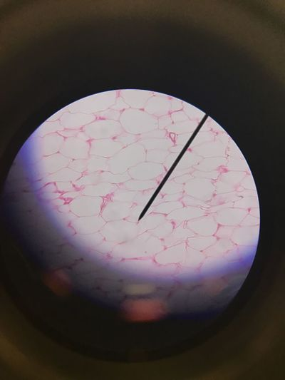 What is life? High Angle View No People Indoors  Science Close-up Astronomy Day Adipose Life Whatislife Anatomy Tissue Physiology  Fat Intresting Mindblown  WOW Unbelievable Learnsomethingeveryday Live Cells Happy Adults Only Lifestyles Tree