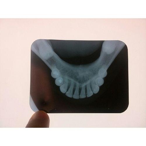 Melhorando cada dia mais! Radiografia Odontologia Sucesso