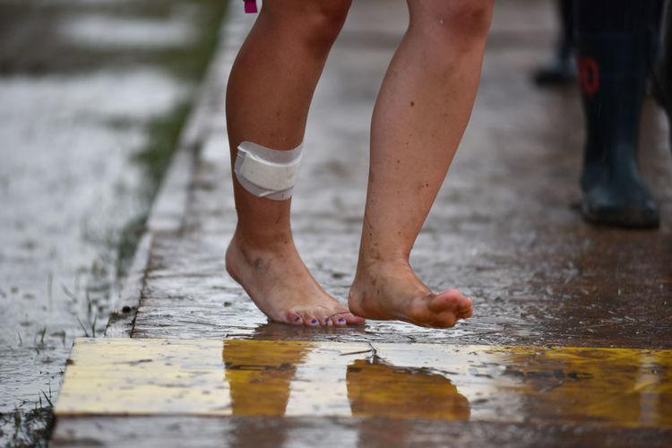 Injured Barefoot Woman On Street