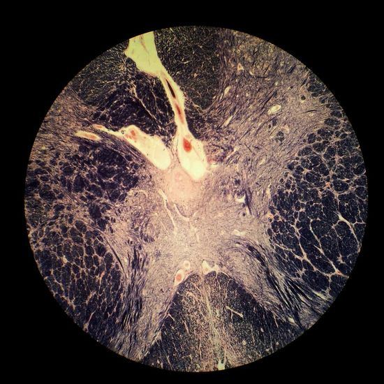 Spinal cord Microscopy Spinalcord Violet Science.  Close-up Modern Workplace Culture