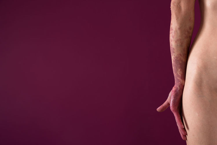 Midsection Of Hemangioma Hand Against Maroon Background