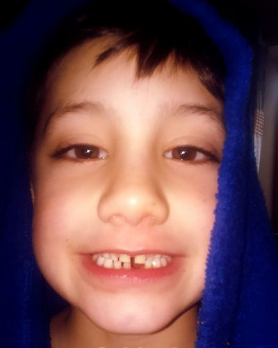 First tooth of many to fall out First Eyeem Photo