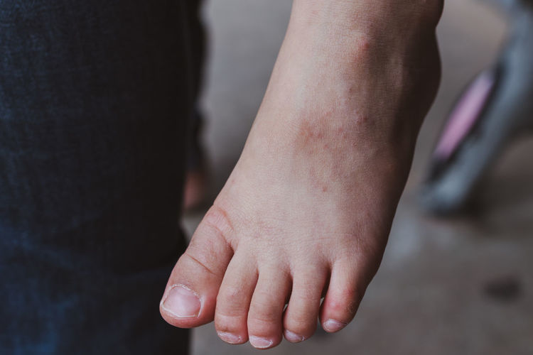 Foot Itchy Body Part Care Close-up Finger Focus On Foreground Human Body Part Human Limb Human Skin Leisure Activity Lifestyles Midsection People Rash Real People Skin Togetherness Two People Women Wound