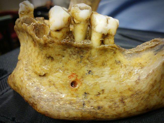 Teeth Bone  Jaw Oldteeth Dentist Time