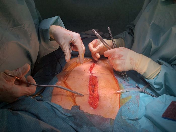 Midsection of surgeons operating patient at hospital