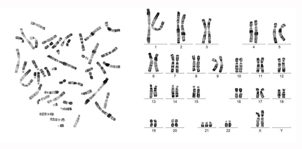 Chromosomes Chromosomes Arrangement Cytogenetics Down's Syndrome Human Biology Human Karyotype Karyotype Micro Biology Micro Nature RHG Banding Science And Technology Science Photos Trisomie21 Trisomy21