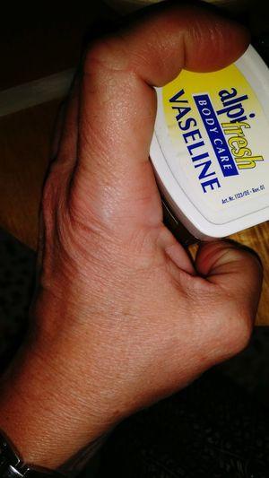 Dry skin.