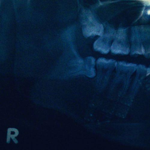 Showing Teeth Rontgent Badluck Surgery