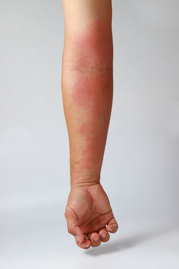 Allergic rash dermatitis eczema skin of patient Eczema Man Red Allergic Body Part Close-up Dermatitis Dermatology Disease Gray Background Hand Healthcare And Medicine Human Body Part Human Hand Indoors  Infection One Person Patient Physical Injury Rash Skincare Spot Studio Shot Symptom White Background
