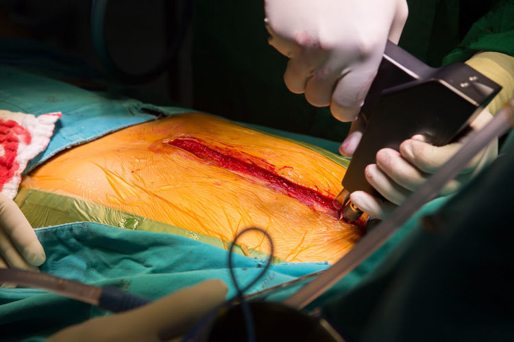 Doctors performing surgery on patient in operating room