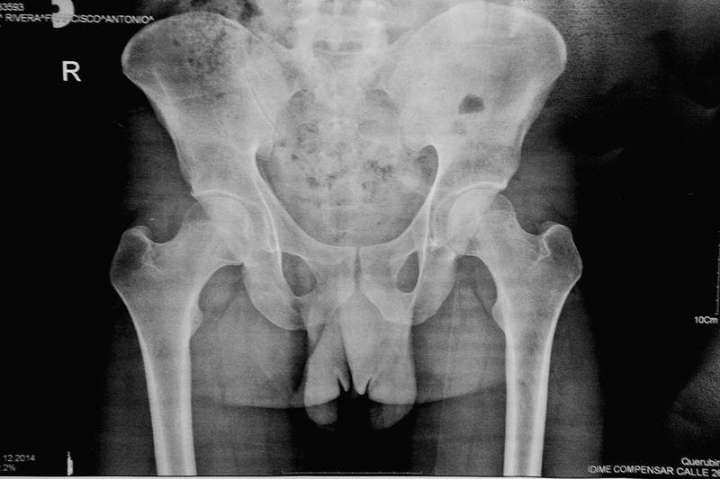 Bones My Bones