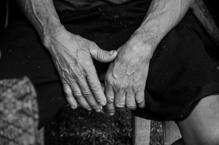 Hands of aging Eyeem Philippines EyeEm Phillipines Health Negros Occidental Outreach Served The Photojournalist - 2017 EyeEm Awards Blackandwhite People Hands Laborer Eyeem Bacolod Veins Contrast
