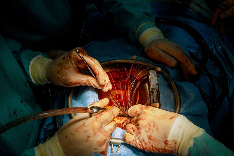 Midsection of surgeons performing surgery at operating room