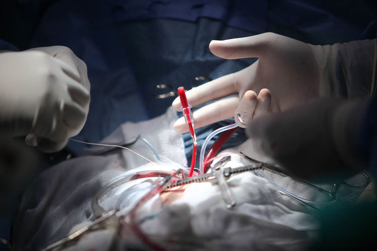 Cropped hands of surgeons doing surgery on patient at hospital
