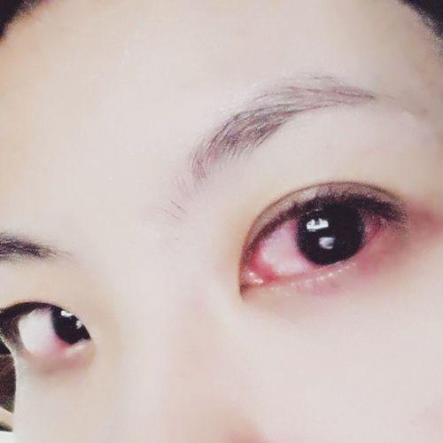 結膜+角膜炎。。。 眼睛sorry。。。 結膜炎 角膜炎
