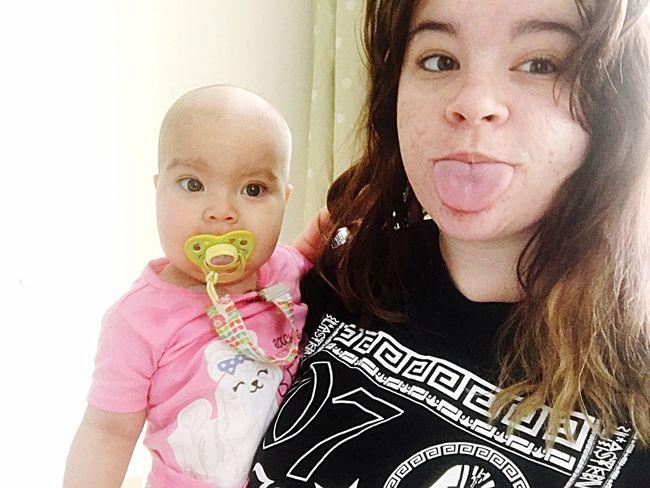 Bald Babies Are The Best SCIDS Enjoying Life Children's Hospital  Babygirl