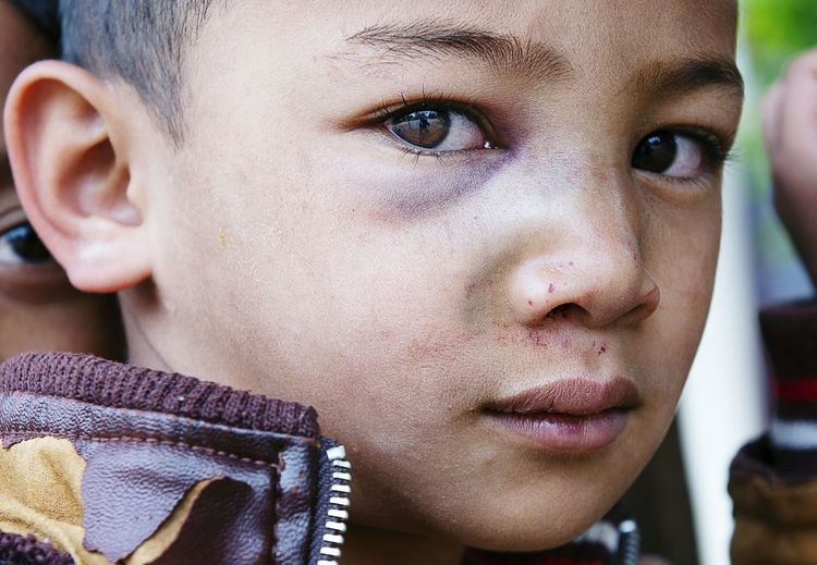 Close-up portrait of cute boy with bruise on face