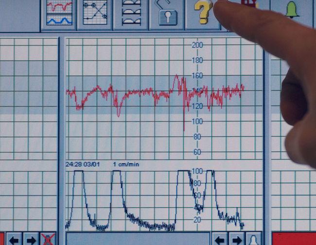 Graphic Statistics  Medical Hospital Belgium Human Hand Human Finger POV Showing