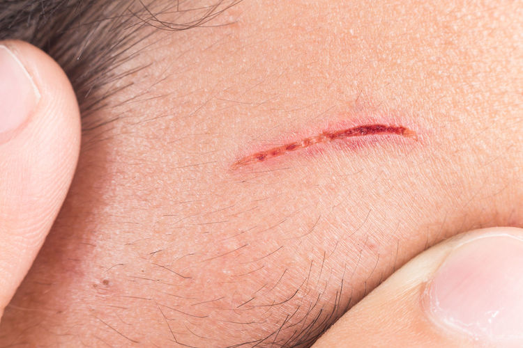 Asian  Cut Forehead Injured Body Part Close-up Deep Cut Healthcare And Medicine Human Body Part Human Face Human Skin One Person Pain Skin Wound