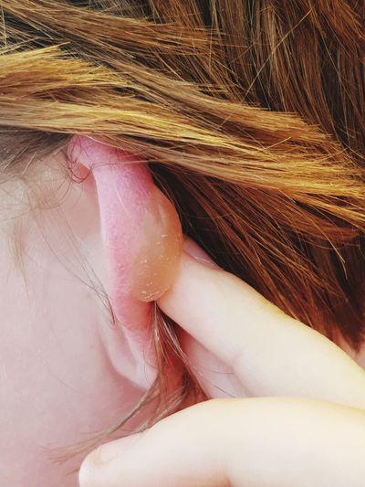 Blister Ear