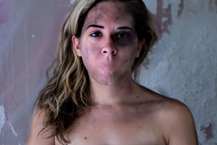 Stop Violence. Adult Close-up Looking At Camera One Person People Portrait Real People Reality Stop Violence  Young Women