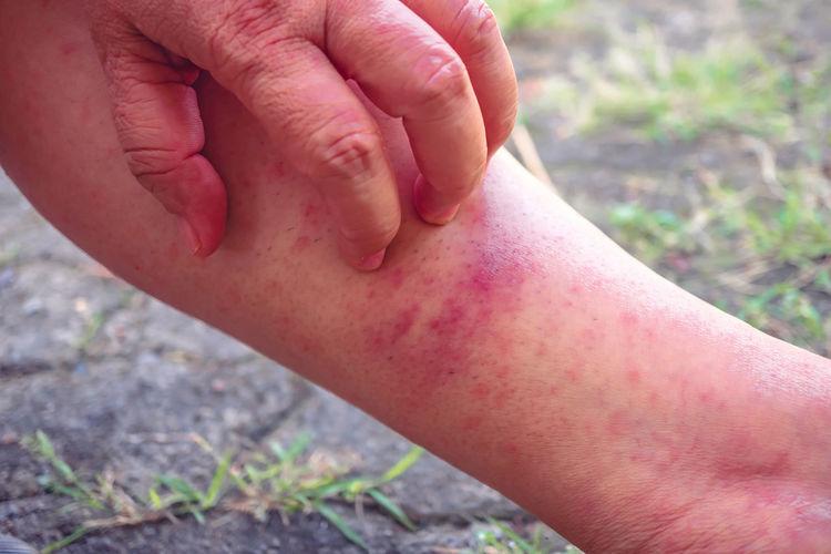 The rash may be