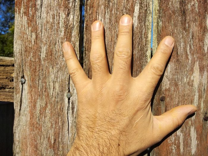 EyeEm Selects Hand Hand On Fence Left Hand Scar On Hand Human Hand Palm Human Finger Close-up