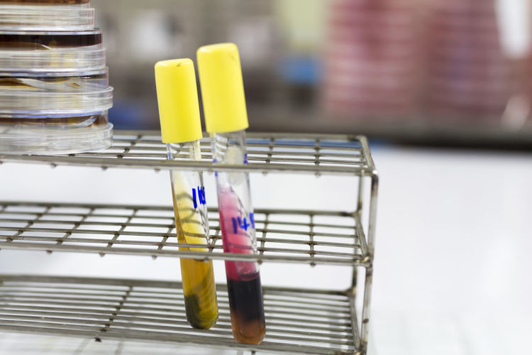 Close-up of liquids in test tubes on rack in laboratory
